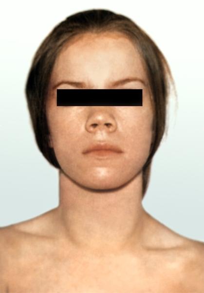 фото увеличение щитовидной железы