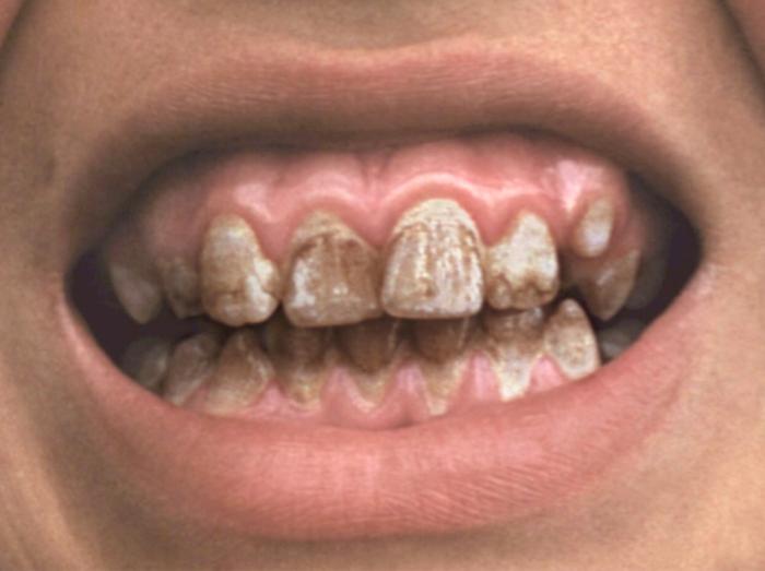 Зубы Гетчинсона фото