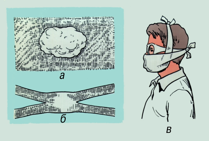 Как сделать марлевую повязку