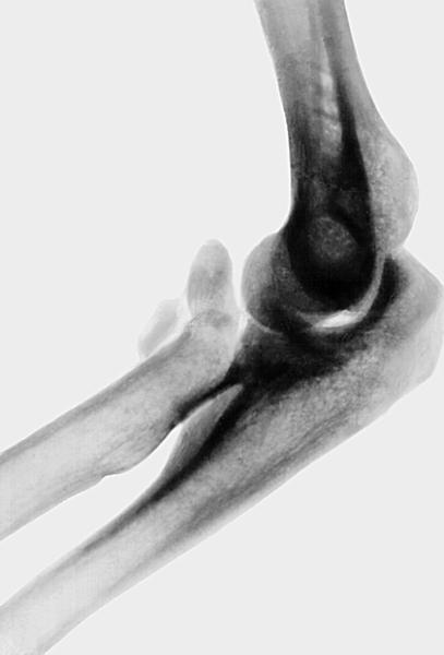 Медицинская энциклопедия ложный сустав локтевой кости кости плечевого сустава человека