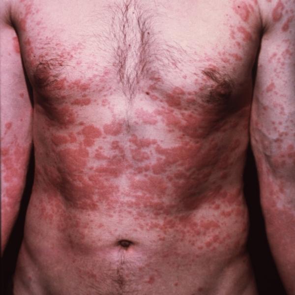 Профилактические таблетки от гельминтов у человека