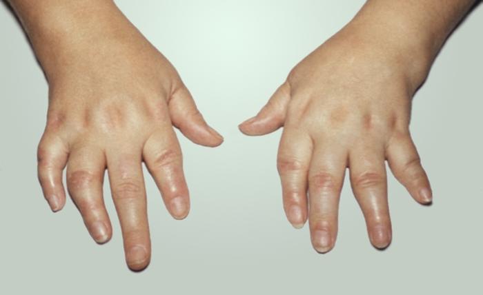 Деформация кистей при мутилирующем псориатическом артрите - Д ...