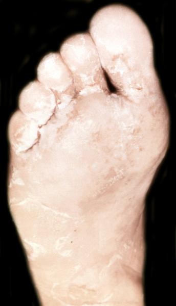 I Эпидермофития стоп (epidermophytia pedum) заболевание кожи и ногтей, вызываемое грибком Trichophyton interdigitale.