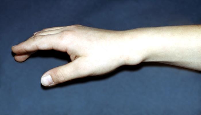Область лучезапястного сустава связки грудино ключичного сустава