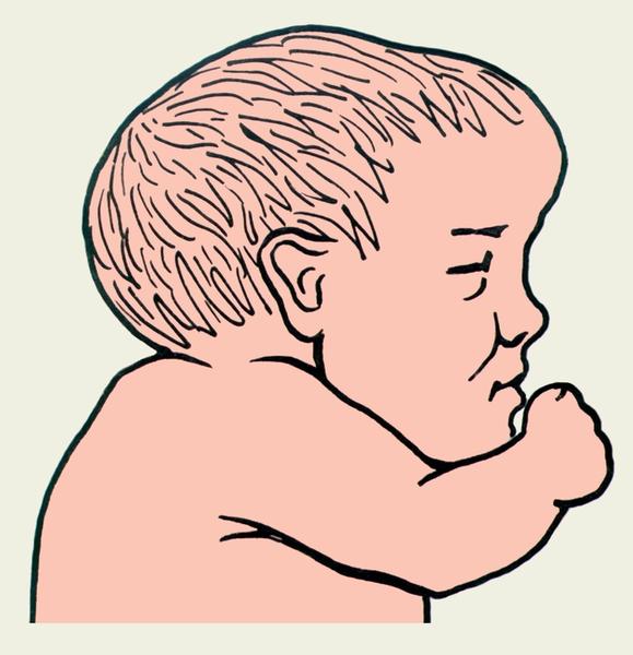 Изменение Формы Головки Ребенка Во Время Родов фото