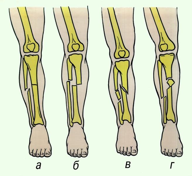 переломов диафизов костей