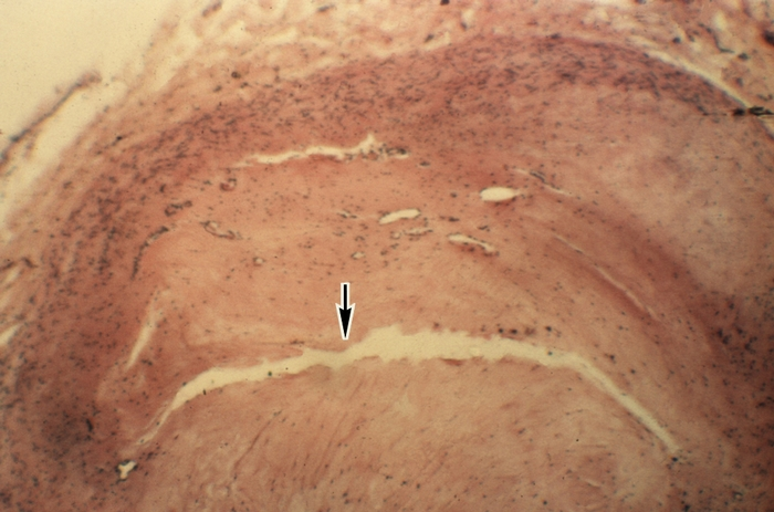 Микропрепарат венечной артерии сердца при атеросклерозе - М ...