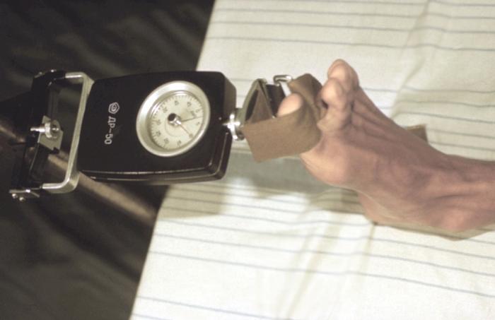 Илеопроктостомия фото