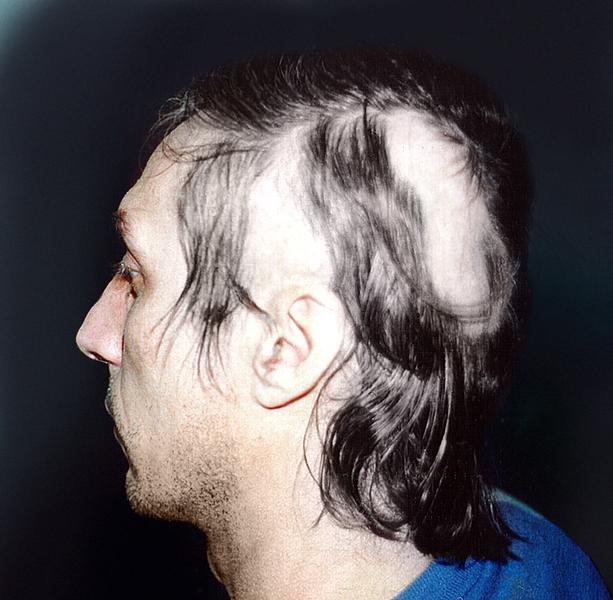 Выпадение волос болезнь