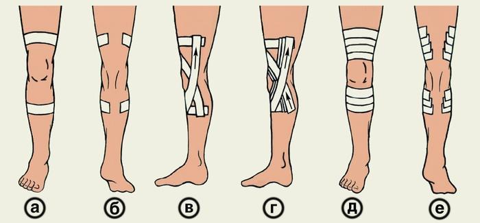 Травма коленного сустава status localis если болит внутри колено