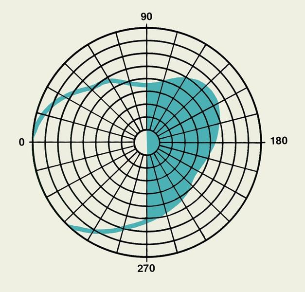 Схема изменений полей зрения