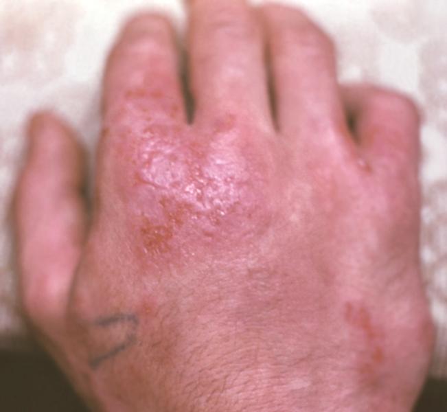 Секс при аллергическом дерматите