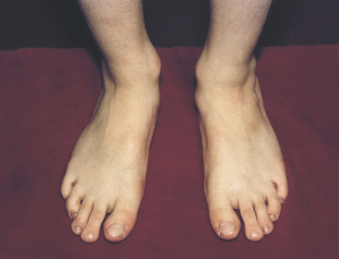 Полиоэнцефалит фото
