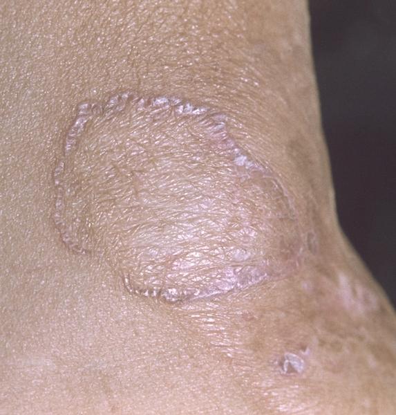 Вестн. дерм. и вен., 11, с. 58,1977; Дифференциальная диагностика кожных болезней, под ред. Б.А.