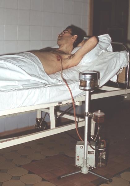 Жидкость в легких после операции на сердце