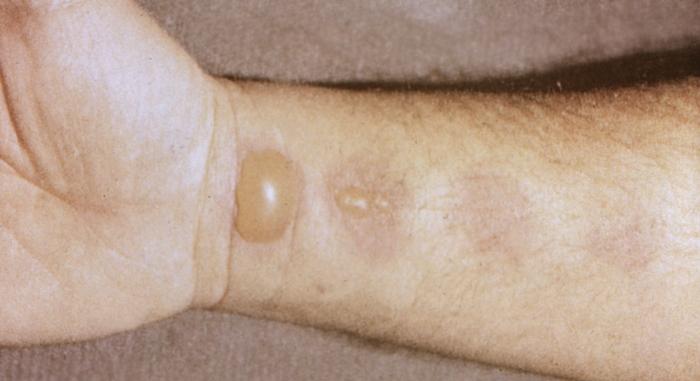 Кожные заболевания у собак фото симптомы лечение