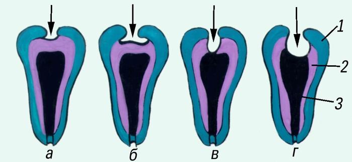 зубов при различных формах