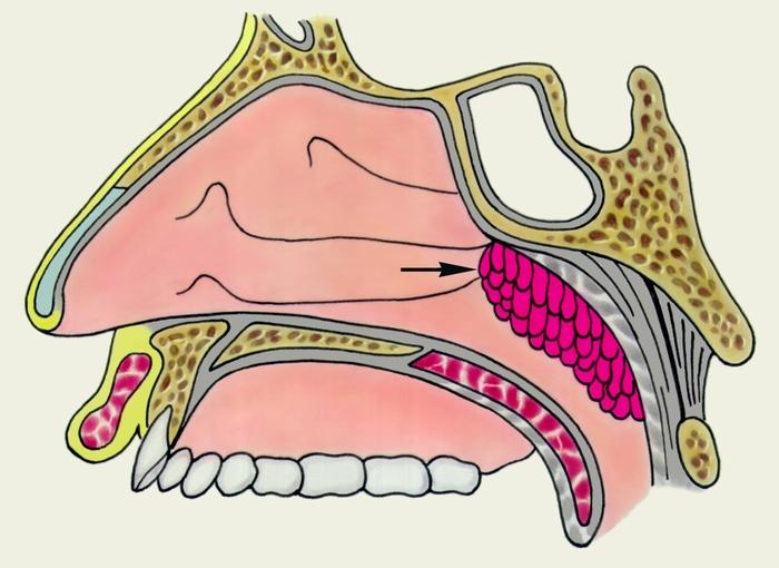 Сагиттальный разрез носоглотки