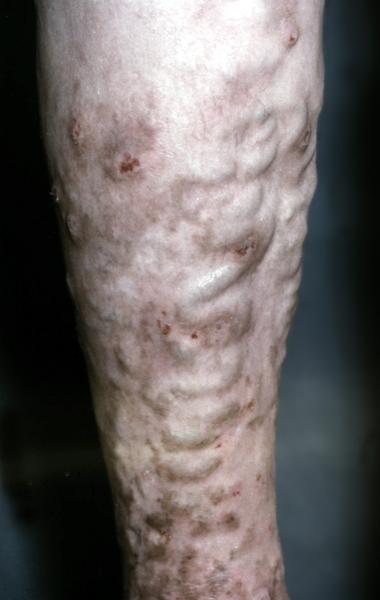 К какому врачу обращаться с варикозом на ногах