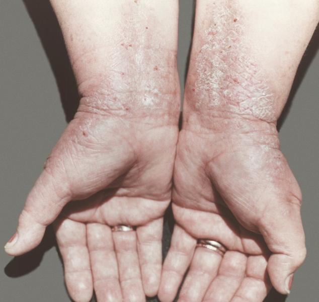 Рис. 1. Руки больной с ограниченным нейродермитом кожа области