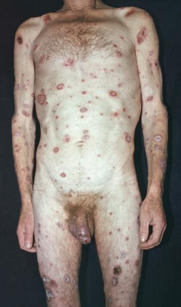 язвы и эрозии при вторичном сифилисе
