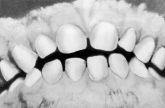 Ортодиаграф фото