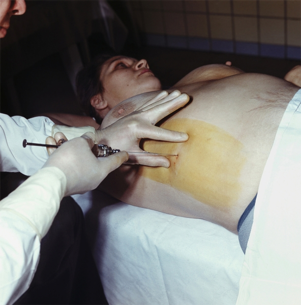 Панкреатотомия