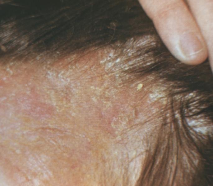 1 1 для лечение и восстановление волос