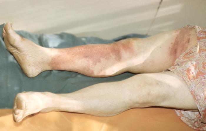 Эритроцианоз фото