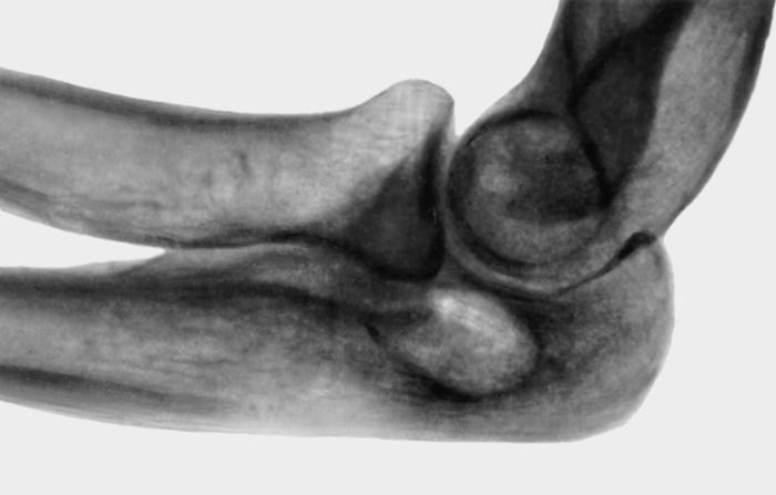 Медицинская энциклопедия ложный сустав локтевой кости лечебная глина для суставов
