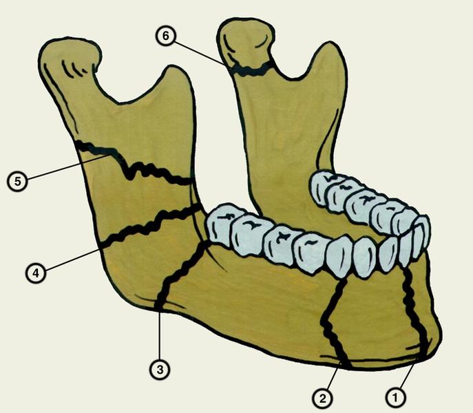 Перелом челюсти схема