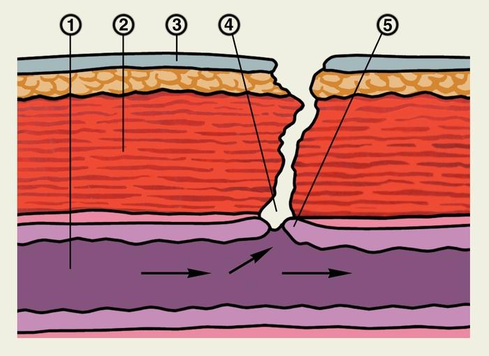 5 — стенка тонкой кишки.