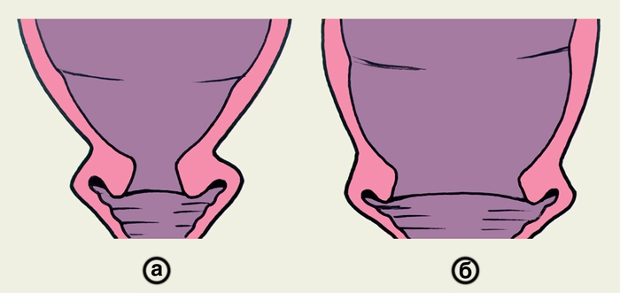 Секс раскрытие шейки