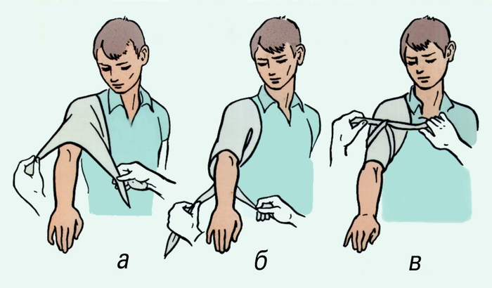 Наложение повязок на плечевой сустав комбинорованные суставы