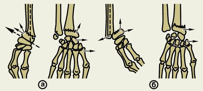Схема переломов лучевой кости
