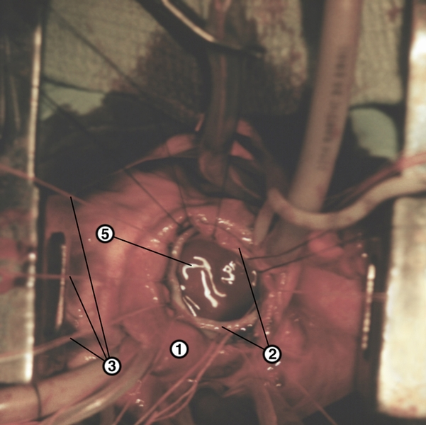 Орхидопексия фото