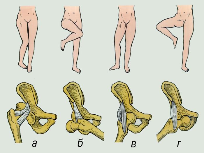 виды движений в тазобедренном суставе