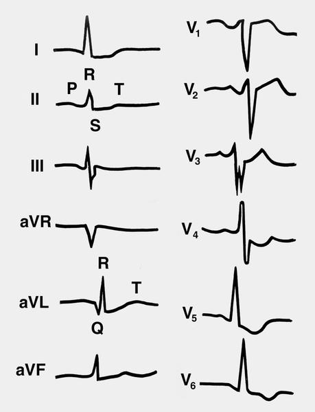 Рис. 9. Электрокардиограмма при гипертрофии левого желудочка с признаками его систолической перегрузки...
