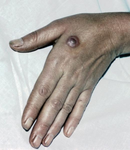 Пиомиозит фото