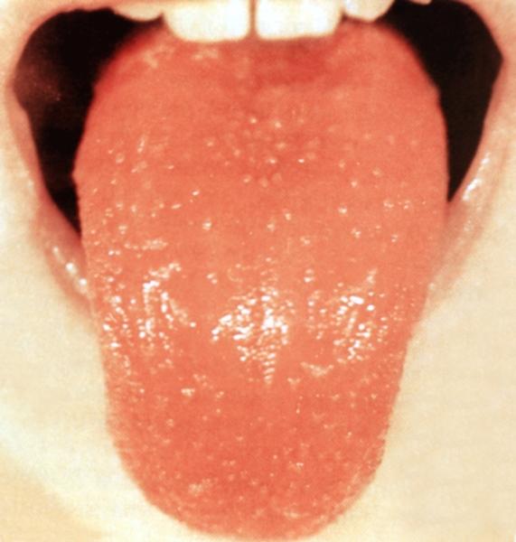 Краснуха болит горло