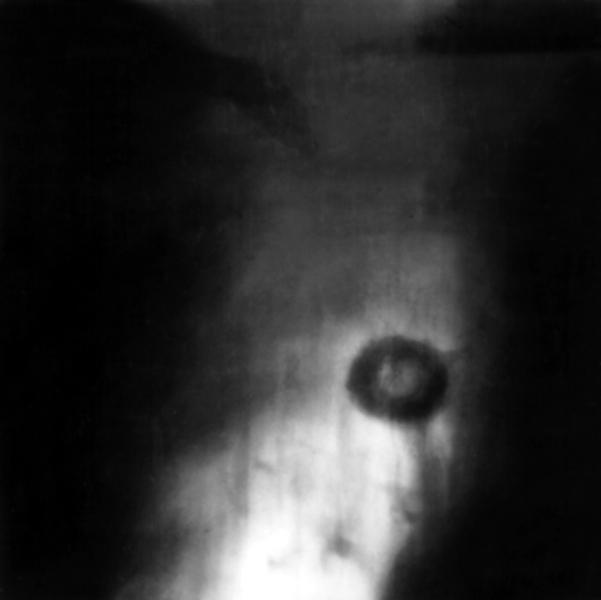 Туберкулема фото