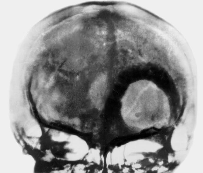 Опухоли паращитовидной железы фото