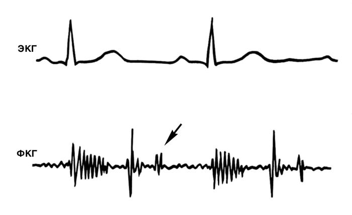 синдром фабри симптомы Гломерулонефрит хронический - описание, причины, симптомы.