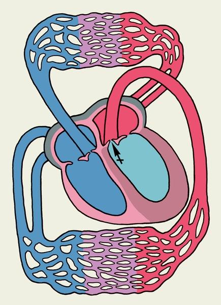 Схема основных изменений сердца при недостаточности аортального клапана (обозначения те же, что на рис. 3)...