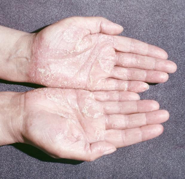 Лечение псориаза в домашних условиях (рассказ-быль переболевшего псориазом)