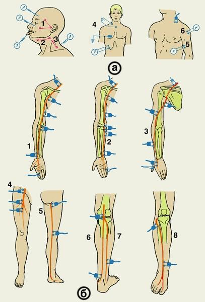 Правосторонний с-образный сколиоз грудного отдела 1 степени