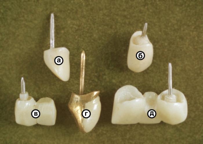 Различные виды штифтовых зубов Р Медицинская библиотека Различные виды штифтовых зубов