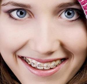 Ортодонтия в современной стоматологии