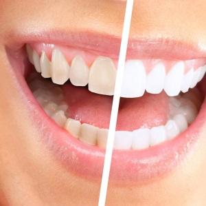 Почему меняется оттенок эмали зубов!