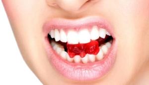 Вредные привычки и здоровье зубов